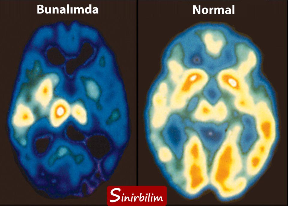 Sağlıklı ve Depresyon Halindeki Beyinler