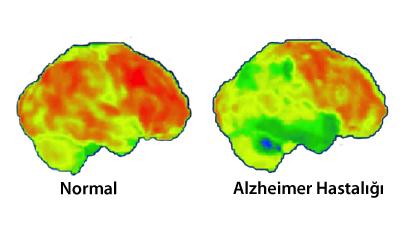 Sağlıklı ve Alzheimer Hastalığı Olan Beyinlerin Karşılaştırılması