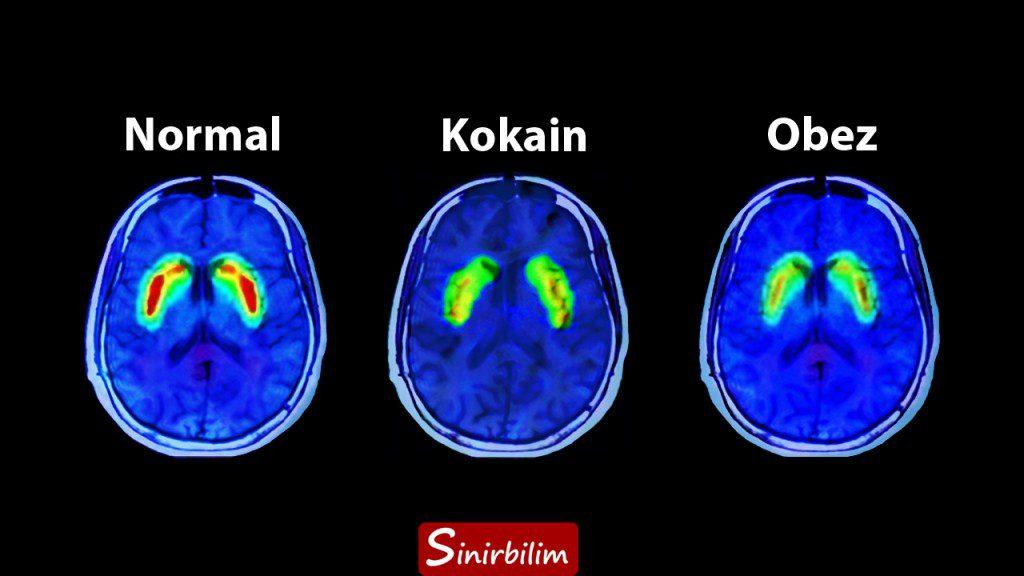 Dopaminin PET Çekimi Altındaki Görüntüsü