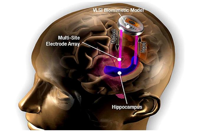 Nöral İmplantlar: Geleceğin Elektrikle Çalışan Beyinleri