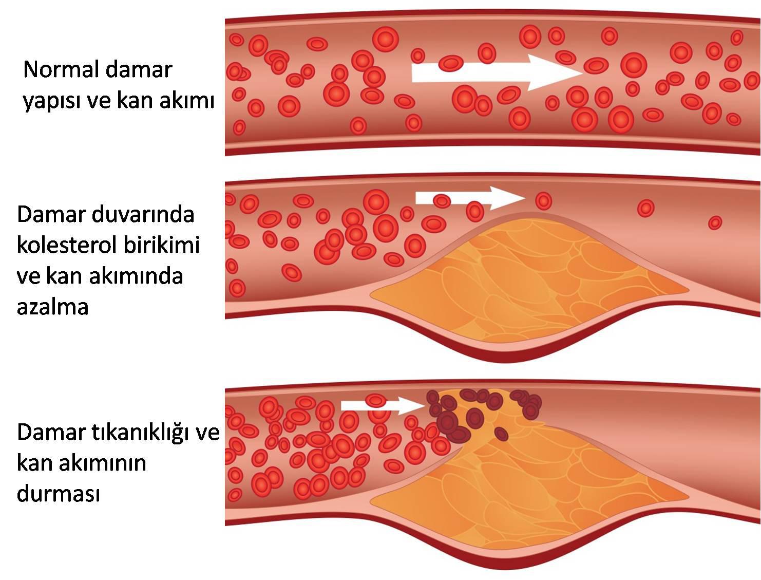 Tek bir Fotoğrafla Kolesterol Testi