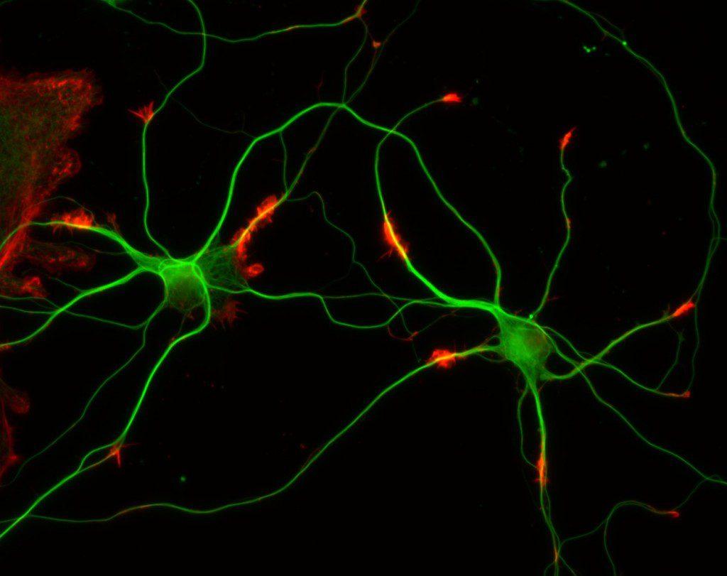 Hastalıklar Nöron Transfer Ederek Tedavi Edilebilir