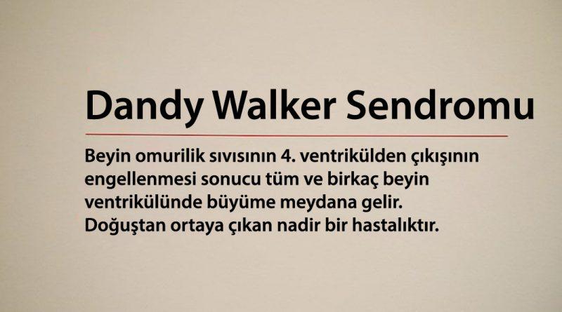 dandy walker sendromu
