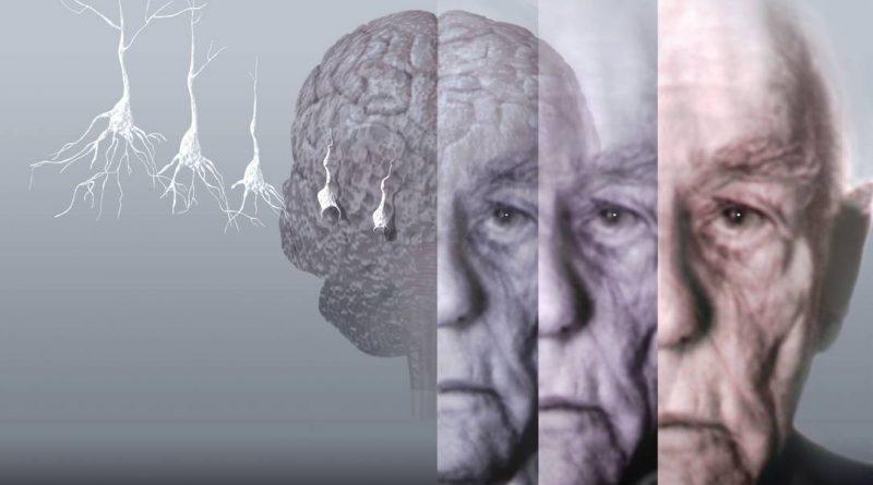 Alzheimer Hastalığı ve Demans Arasındaki Farklar