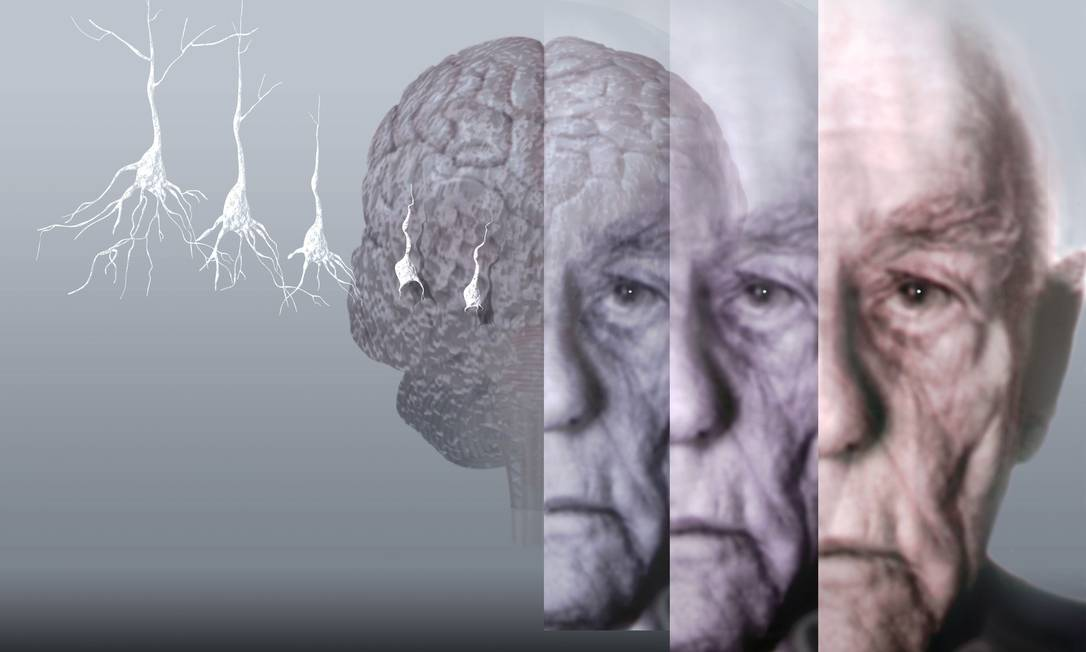 Demans ve Alzheimer Hastalığı Arasındaki Farklar Nelerdir? - Sinirbilim