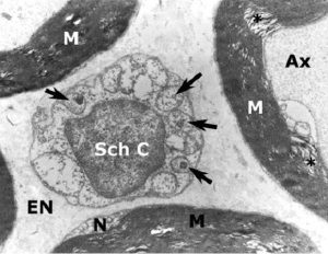 Schwann Hücresi