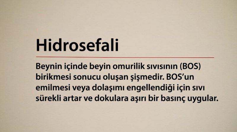 Hidrosefali