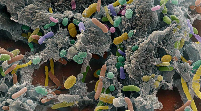 Bağırsaktaki Bakteriler Alzheimer Hastalığında Rol Oynuyor