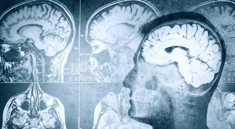 Alzheimer hastalığının başlangıç noktası bulundu: Lokus seruleus