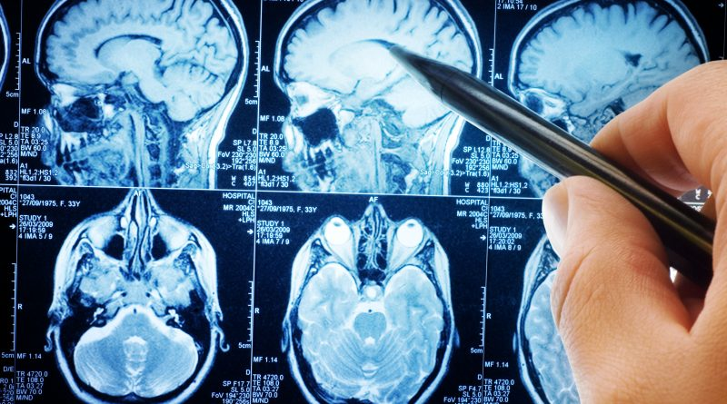 Travmatik Beyin Hasarı Yüzlerce Geni Değiştirebilir