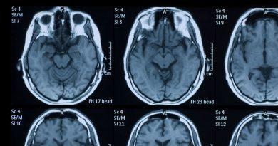 Kafa Travması Yaşamak Demansın Ortaya Çıkmasına Neden Olabilir