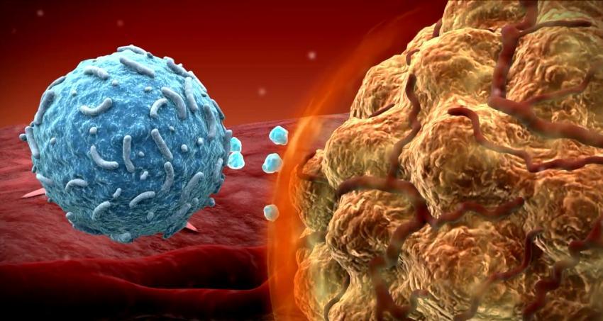 Programlanmış Kök Hücreleri Beyin Tümörlerini Temizliyor