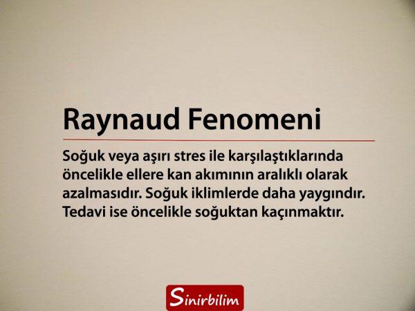 Raynaud Fenomeni