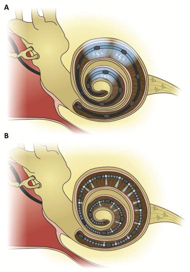 İşitme Kaybı Optogenetik İmplantlarla Tedavi Edilebilir