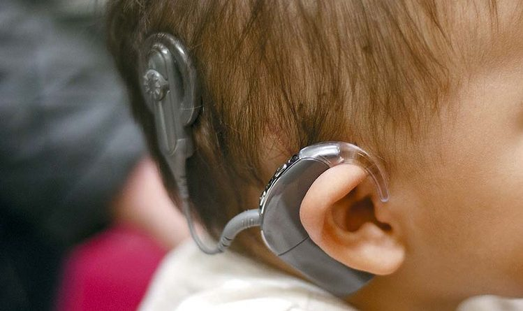 the cochlear implant debate in sweet nothing in my ear a movie by joseph sargent Search - sweet nothing in my ear - hallmark hall of fame who struggle to decide whether or not to give their deaf son a cochlear implant joseph sargent.