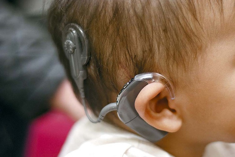 the effects of cochlear implants on The fda cautioned that children with an early version of the cochlear implants side effects face an increased threat of meningitis beyond the first two years.