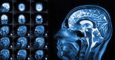 Beyin Taramaları Gelecekten Haber Verebilir