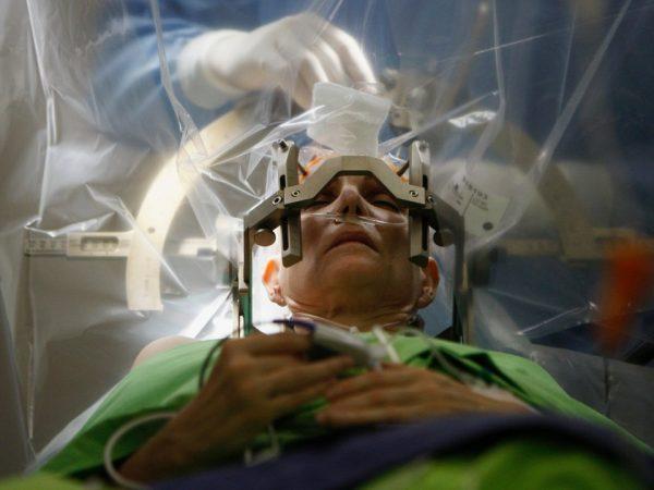 Hasar Gören Beyin Sinyalleri Nöroçipler İle Geriye Döndürülebilecek