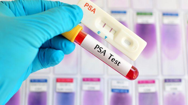 Prostat Kanseri Taramasında PSA Testi Ne Kadar Etkili Oluyor?