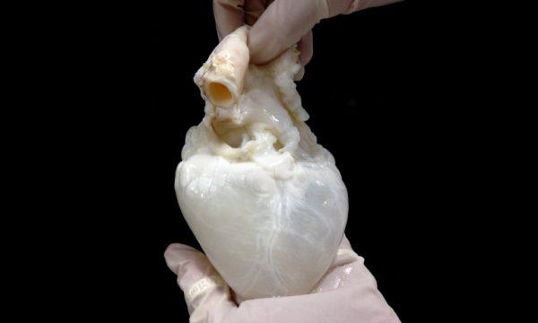 Hücresizleştirme Yöntemiyle Organ Nakli Daha Başarılı Olacak
