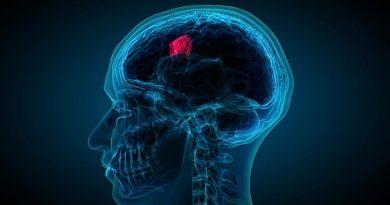 Beyin Tümörü Belirtileri Nedir? Nelerden Korkmalıyız?
