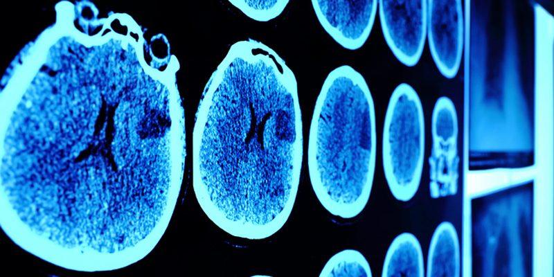 D Vitamini Eksikliği Beyni Nasıl Etkiliyor?