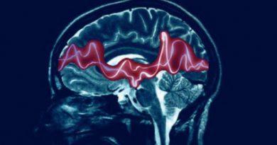 Epilepsi Nedir, Nasıl Tedavi Edilir?