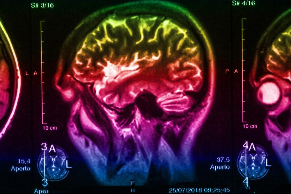 Parkinson Hastalığı'nın Erken Belirteci: Serotonin