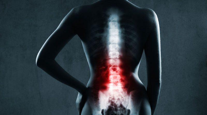 Ankilozan Spondilit Belirtileri Hasta Eğitimi İle En Aza İndirgenebilir