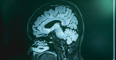 Frontotemporal Demansın Ayırıcı Tanısı Doğru Tedavi İçin Çok Önemli