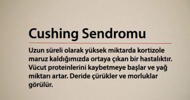 Cushing Sendromu Nedir?