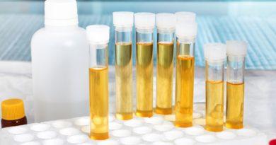 İdrar Testi ile Mesane Kanseri 10 Yıl Önceden Teşhis Edilebilir