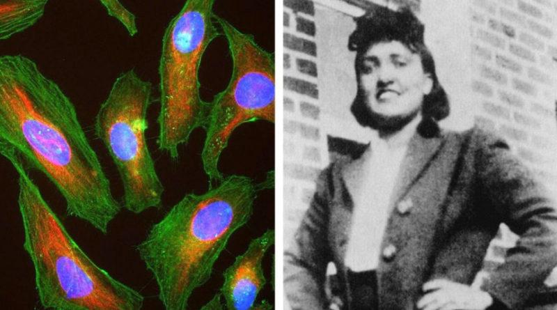 Ölümsüz-Kadın-Henrietta-Lacks-ve-Meşhur-HeLa-Hücreleri