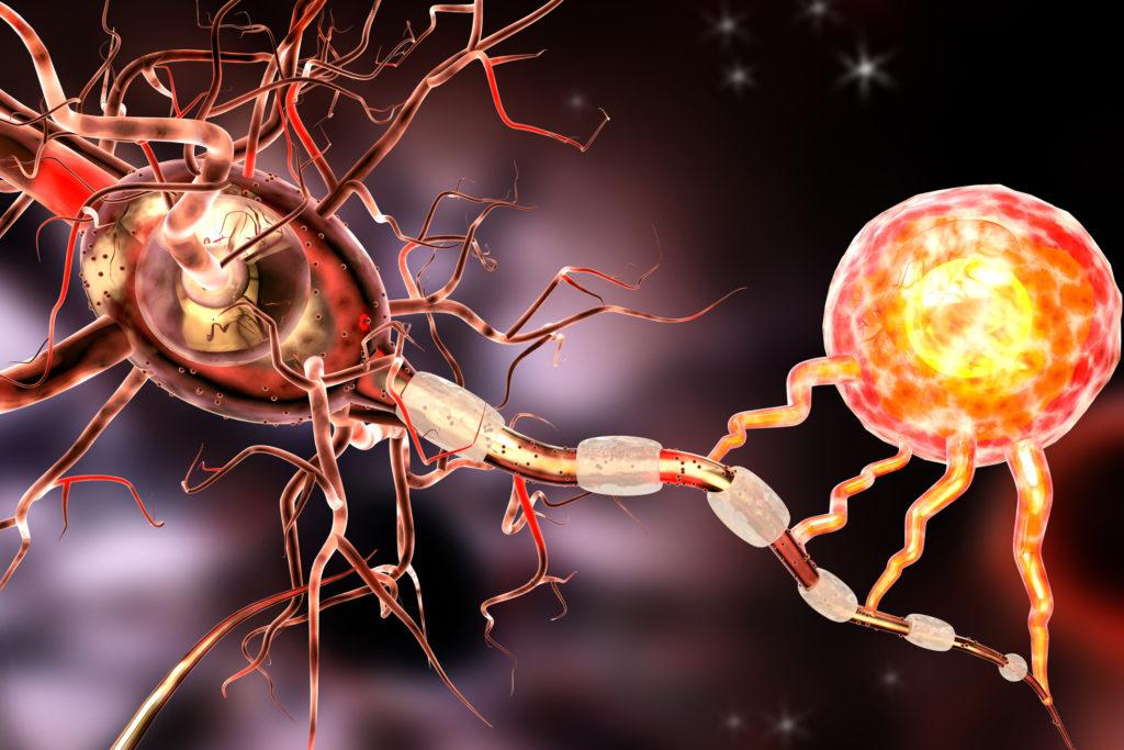 Multiple Skleroz Nedir, Hangi Belirtileri Gösterir?
