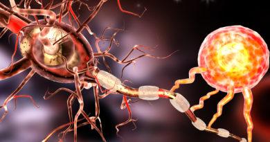 Multiple-Skleroz Nedir, Hangi Belirtileri Gösterir?