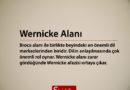 Wernicke Alanı Nedir, Hangi Görevleri Vardır